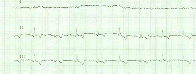 Kardiologische Notfälle beim Kleintier - Herzrhythmusstörungen