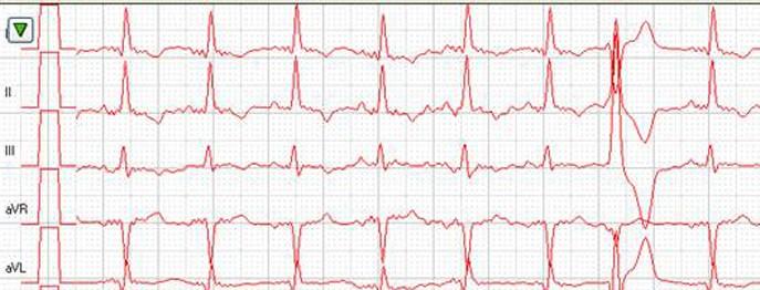 EKG bei der Katze