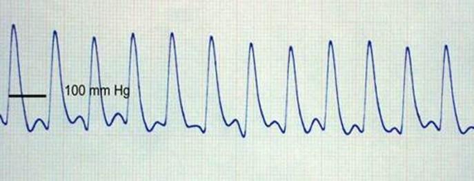 Kardiologie Katze 4